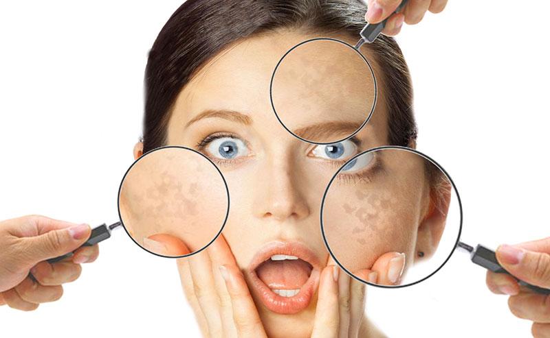 Cosa è l'iperpigmentazione della pelle: come si manifesta, a cosa è dovuta e come si cura