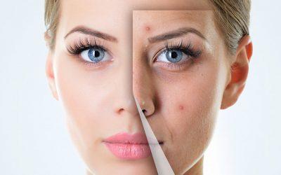 Acne della pelle: cosa è, come si manifesta (i diversi tipi di acne) e come si cura